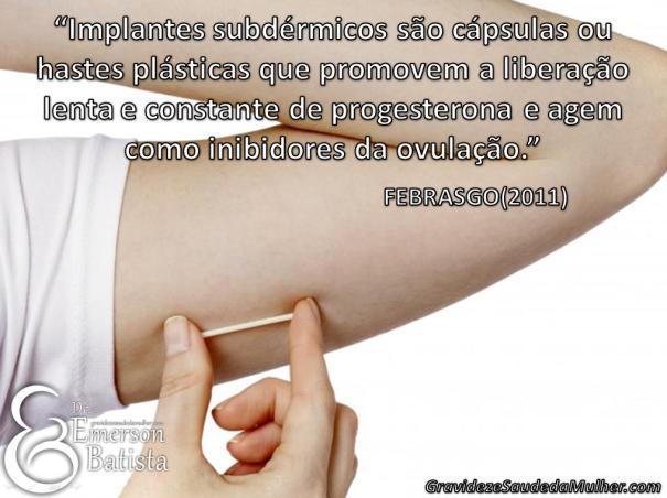 anticoncepcional em implante subdérmico