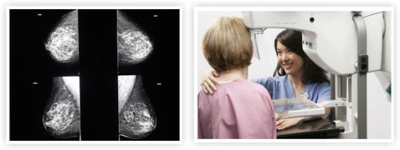 Mamografia 2